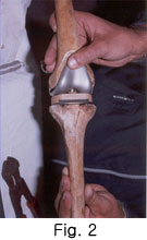 Hi-flexion Total Knee Arthroplasty